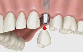 https://www.ceobollate.it/wp-content/uploads/2015/11/implantologia-320x200.jpg
